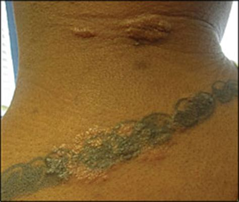 Rash at the Site of a Tattoo - Photo Quiz - American